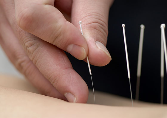 Acupuncture 0